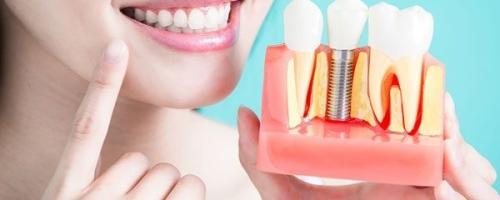 А вы знаете что делает стоматолог имплантолог